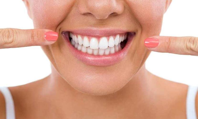 como tener dientes blancos